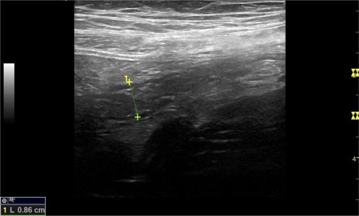 05_Appendicitis Image