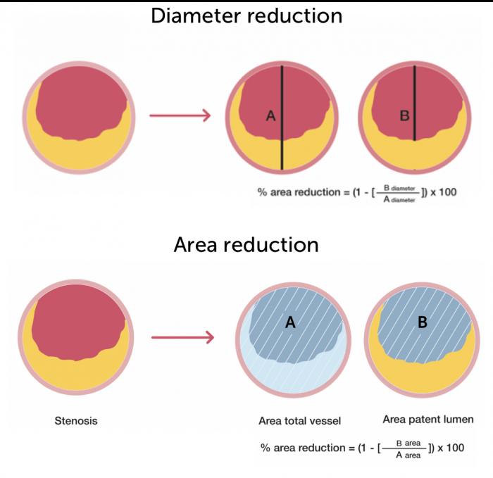 Area Diameter reduction