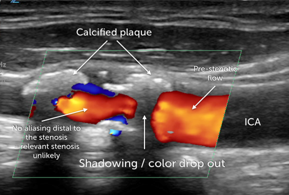 calcified lesion illustr.