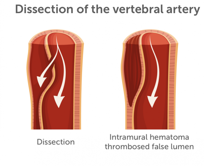 Dissection VA