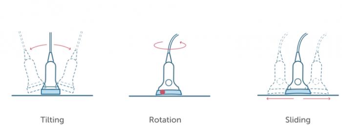 transducer motion