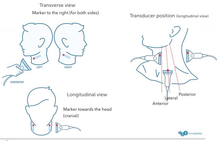 Transducer orientation