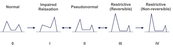 Diastolic dysfunction grading