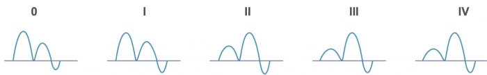 PVSignal_Diastolic_Dysfunction