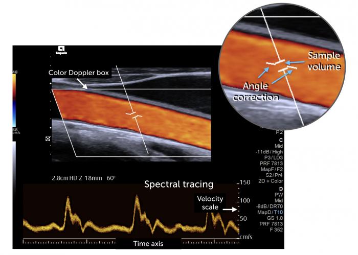 Spectral Explain