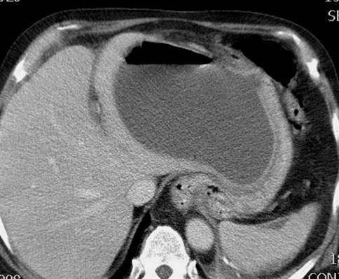 CT scan at the level of image 5