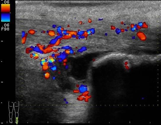 Longitudinal color doppler image of the right distal Achilles tendon