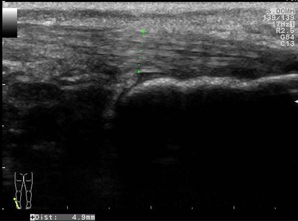 Longitudinal image of the contralateral (left) distal Achilles tendon