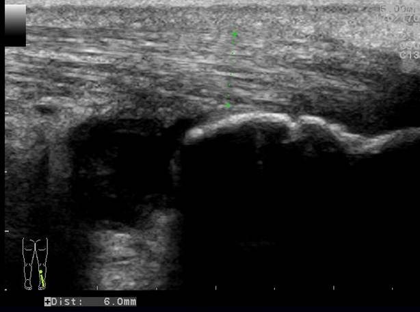 Longitudinal image of the right distal Achilles tendon (picture 2)