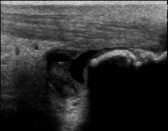 Longitudinal image of the right distal Achilles tendon