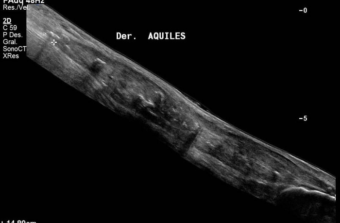 Longitudinal view of R Achilles tendon. (Extended field-of-view)