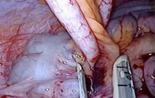 07_Appendicitis Image