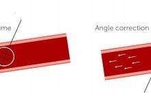 Angle correction