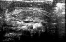 Sagittal image of the epigastric region
