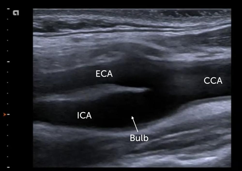 8. ECA vs ICA - External versus internal carotid artery ...